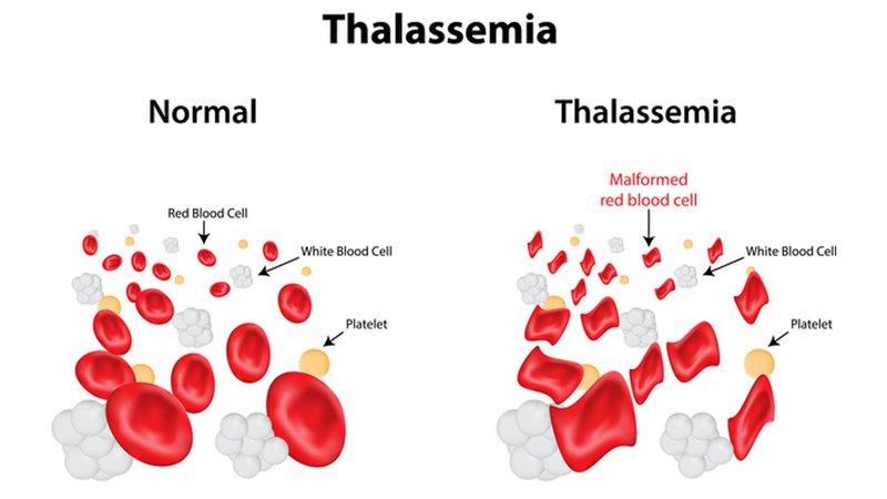 Xét nghiệm bệnh tan máu bẩm sinh Thalassemia