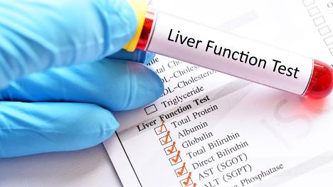 Ai cần xét nghiệm chức năng gan?