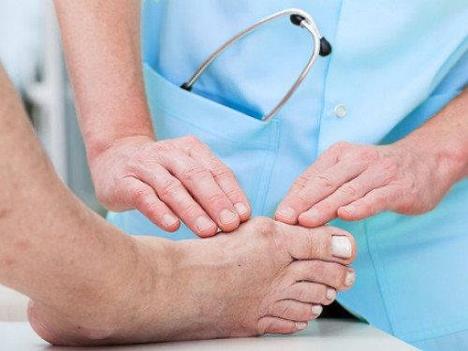 Cách đề phòng cơn Gout cấp