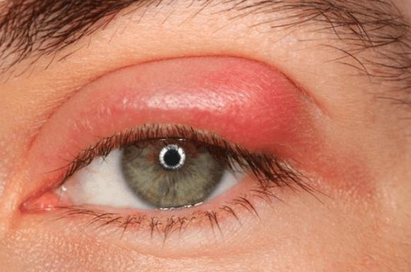 Mắt sưng phù nên thực hiện xét nghiệm Albumin