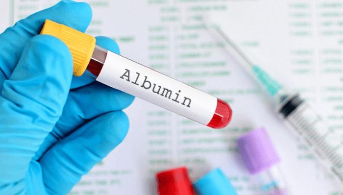 Albumin là một protein rất quan trọng trong cơ thể
