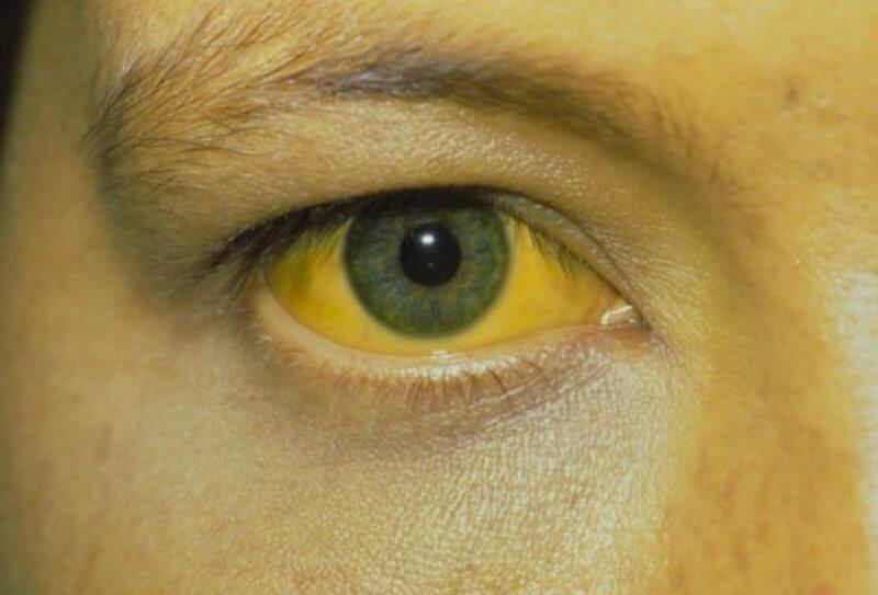 Augbidil có thể gây vàng da