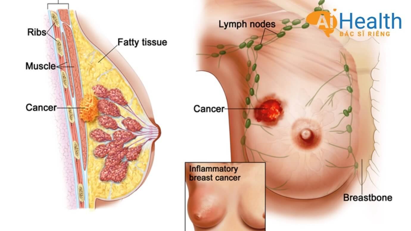 Tầm soát bệnh ung thư vú qua nền tảng AiHealth