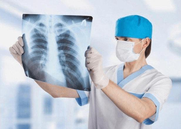 Chụp X-quang phổi để xác định tình trạng sức khỏe