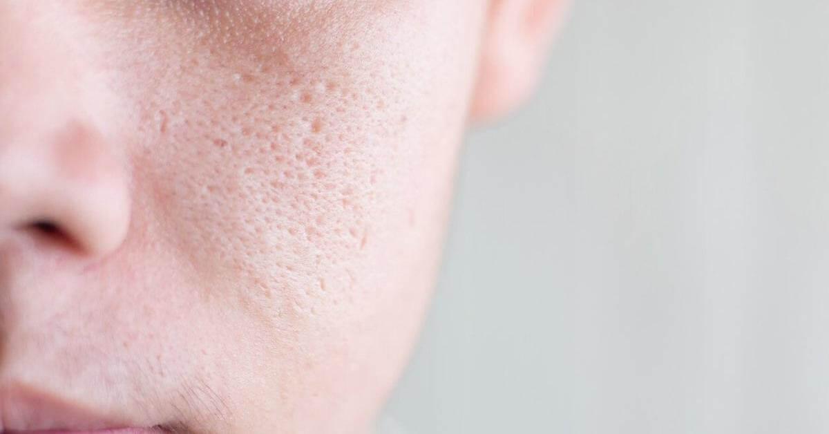 Lỗ chân lông to là nơi tích tụ bã nhờn, dễ gây mụn.