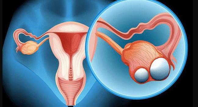 Tầm soát ung thư buồng trứng để sớm phát hiện bệnh