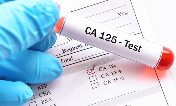 Cách đọc chỉ số xét nghiệm CEA