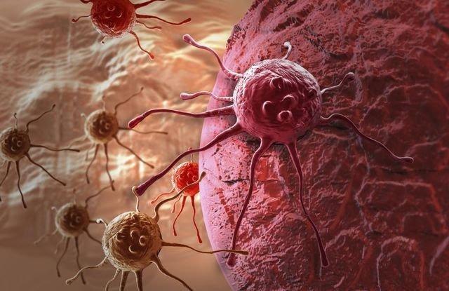 Tế bào ung thư phát triển rất nhanh