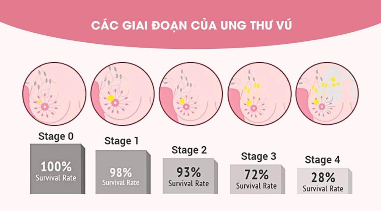 Tầm soát ung thư vú định kỳ để tăng tỷ lệ khỏi bệnh